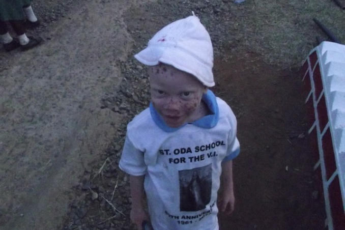 picture of Kenya Orphan Child with Albinism and Visual Impairment