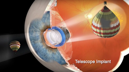picture of Eye Telescope for macular Degeneration